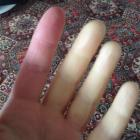 Jenny Andrews' hands show the effects of scleroderma. Photo supplied.