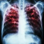 In the end, a Tb-infected person dies, drowning in the remains of their own lungs. Photo: Getty.