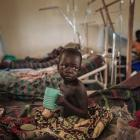 Moraku Tabhu, three-and-a-half years old, who suffers from measles, eats in the measles unit run...