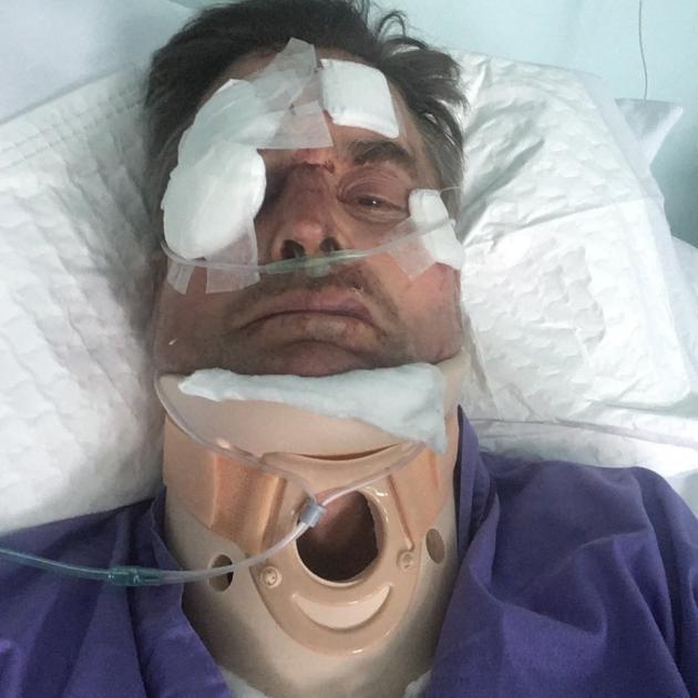 Gordon Brown in hospital after the crash. Photo: Gordon Brown