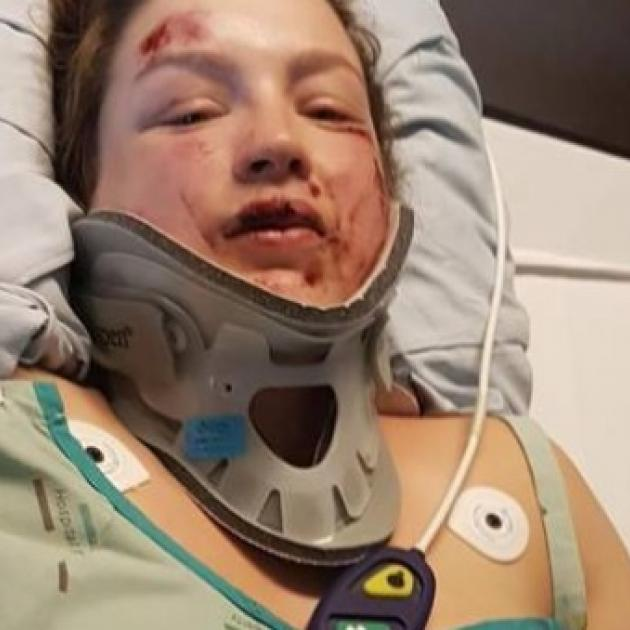 Amy Gianfrancesco fractured her C7 vertebrae, at the base of her neck. Photos: NZ Herald