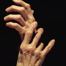 Older people can face issues with malnutrition for a variety of reasons. Photo: Getty Images