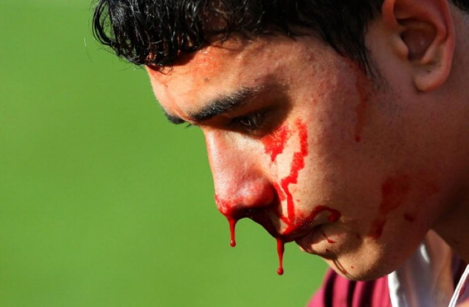 Harison Mataele of Kings College pauses with a bloody nose during the 1st XV rugby match between...