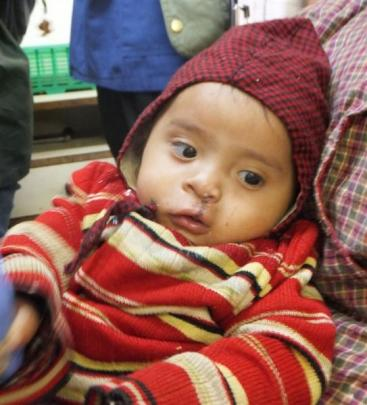 A team of Japanese surgeons corrected the cleft palate of this Nepalese toddler and many more...