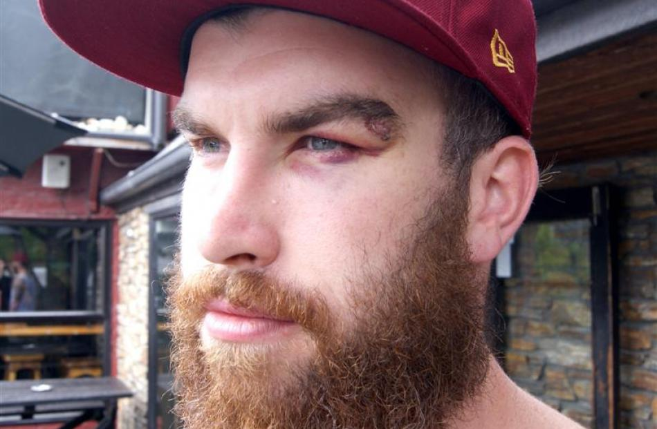 Australian tourist Aaron Rice-Williams was knocked unconscious and suffered concussion, cuts and...